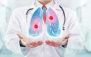 TÜDŐRÁK – A leggyakoribb daganatos betegség