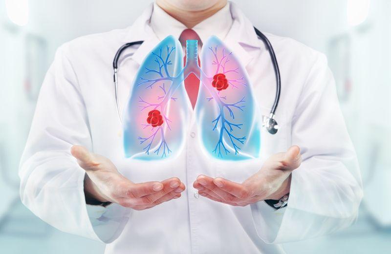 A megelőzés mellett ki kell hangsúlyozni a korai felismerés fontosságát, mivel igen nagy a különbség a betegség korai és későbbi stádiumában diagnosztizált betegek gyógyulási esélyei között. Fotó: Shutterstock