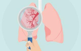 VILÁGNAP – Egy nehezen felismerhető tüdőbetegség