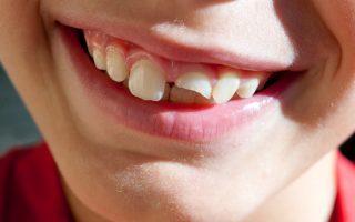 FOGHÍJAS – A tizenkét éveseknek minden harmadik foga hiányzik